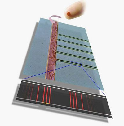 Штрихкодовый чип видит десятки болезней в одной капле крови