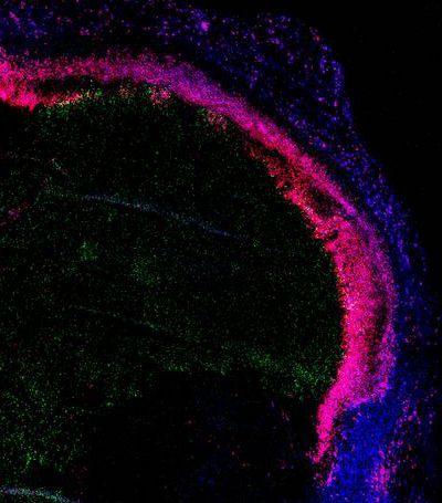 Теория игр подсказала биологам пути атаки на рак